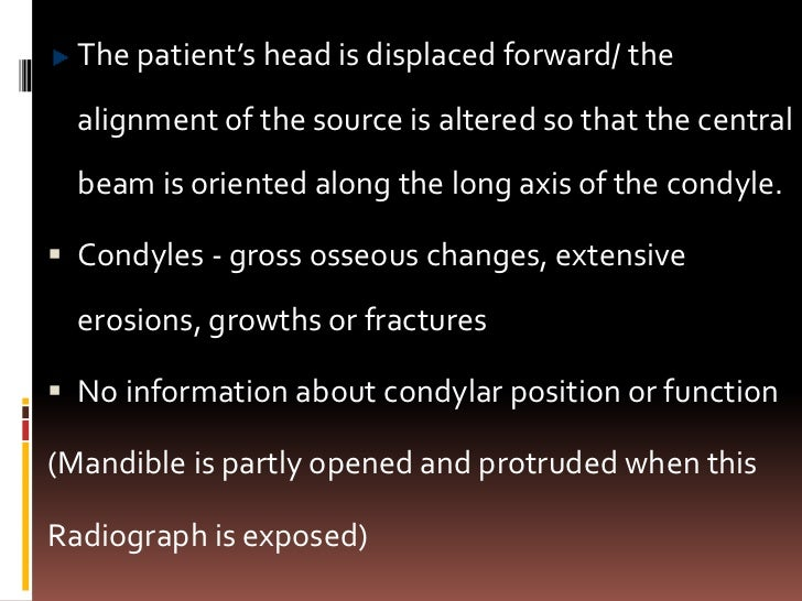 Dental panoramic tomographIndications- TMJ dysfunction syndrome Disease within joint Pathology-condylar heads Fracture...