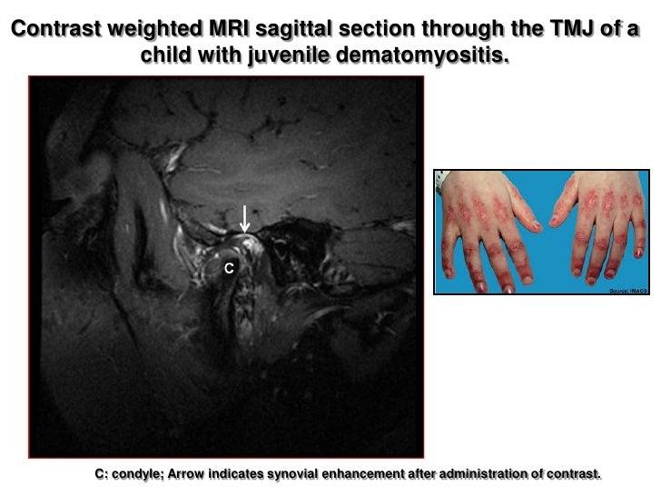 corticosteroid refractory transverse myelitis