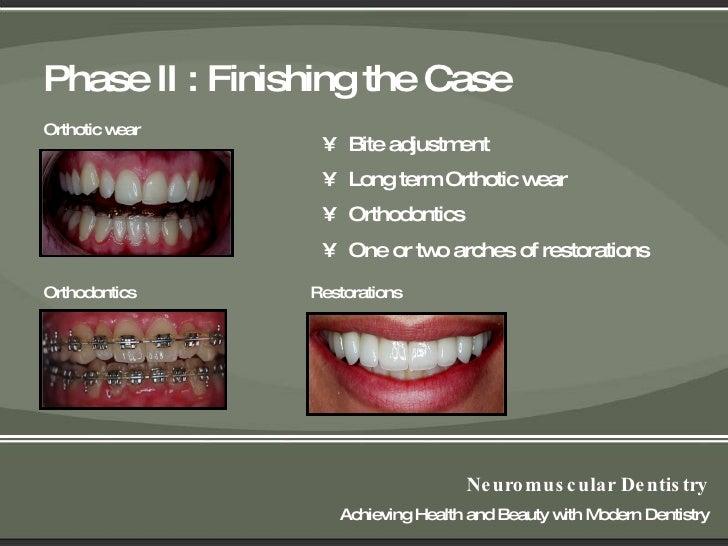 Seattle Tukwila Renton Bellevue Tmj Dentist