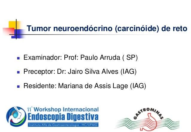 Tumor neuroendócrino (carcinóide) de reto Examinador: Prof: Paulo Arruda ( SP) Preceptor: Dr: Jairo Silva Alves (IAG) R...