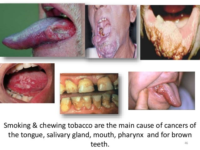 the effects of tobacco Information on diseases caused by tobacco use, such as cancer, heart disease, and respiratory diseases also find information on the health effects of smoking during.