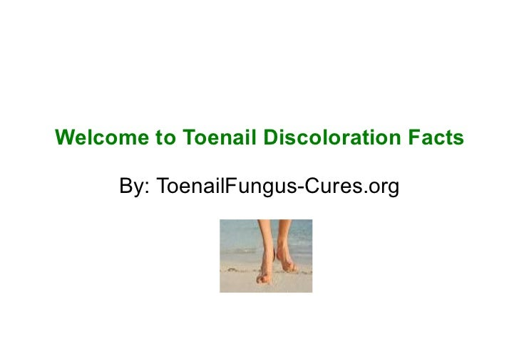 Welcome to Toenail Discoloration Facts     By: ToenailFungus-Cures.org