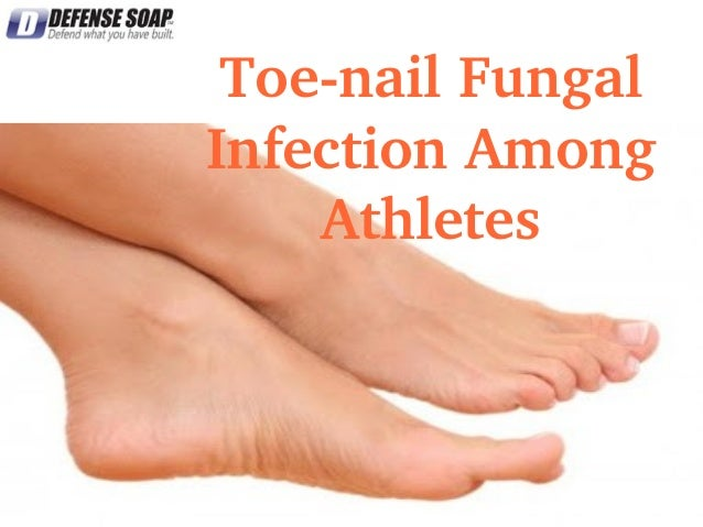 Toe­nail Fungal  Infection Among  Athletes