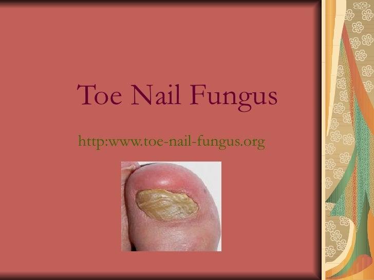 Toe Nail Fungus http:www.toe-nail-fungus.org