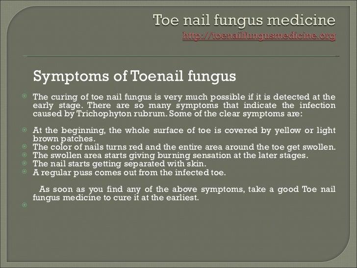 Toe Nail Fungus Medicine