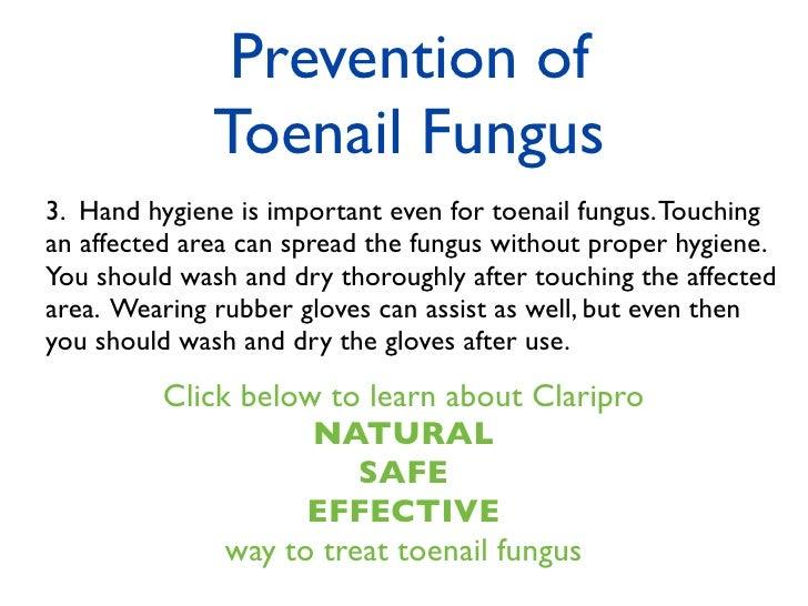Toenail Fungus Symptoms Causes Treatments Prevention