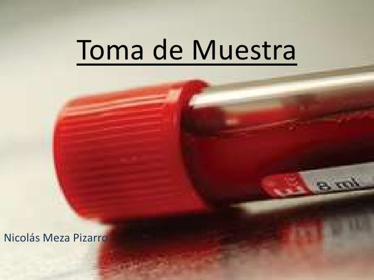 Toma de MuestraNicolás Meza Pizarro
