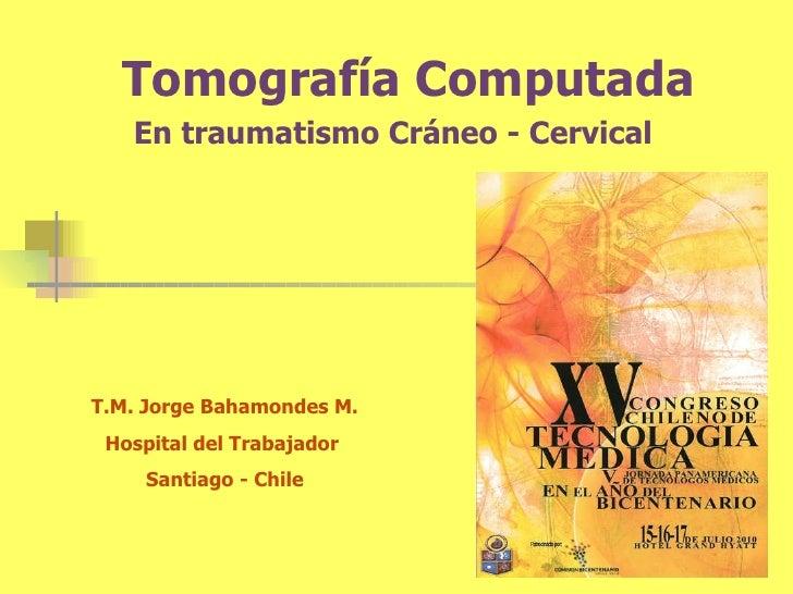 Tomografía Computada En traumatismo Cráneo -  Cervical T.M. Jorge Bahamondes M. Hospital del Trabajador  Santiago - Chile