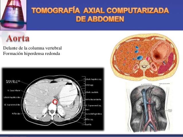 Tomografia axial computarizada (abdominal)