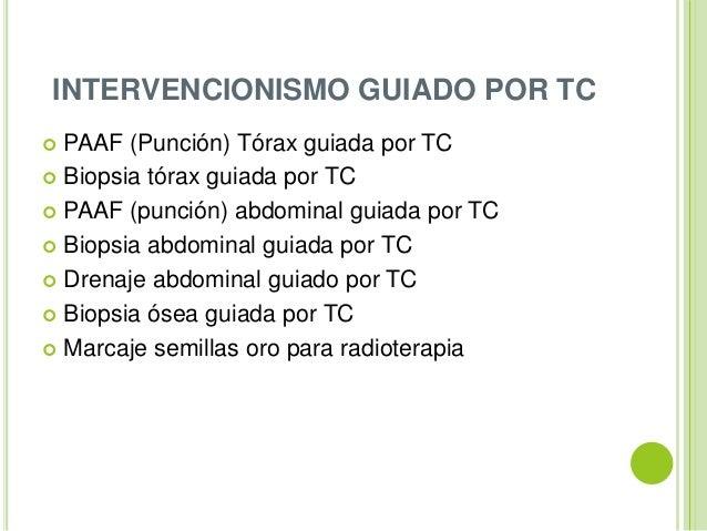 Tomografia axial computarizada (TAC), TOMOGRAFIA