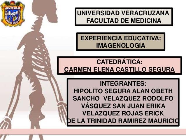UNIVERSIDAD VERACRUZANA FACULTAD DE MEDICINA CATEDRÁTICA: CARMEN ELENA CASTILLO SEGURA INTEGRANTES: HIPOLITO SEGURA ALAN O...
