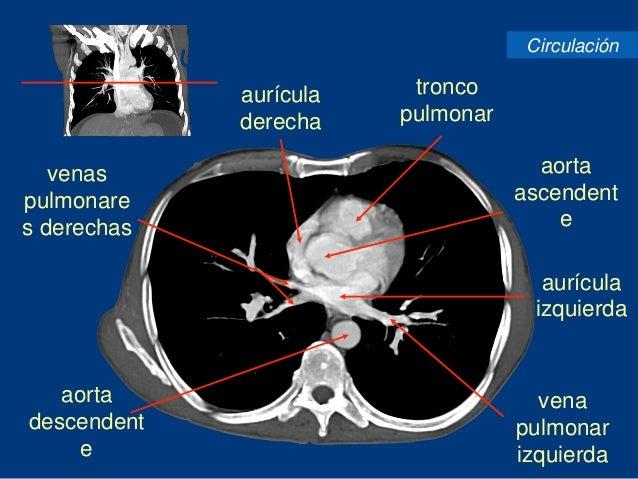 Tomografía de tórax de alta resolución