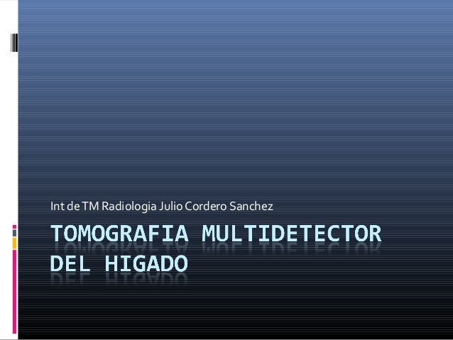 Int de TM Radiologia Julio Cordero Sanchez
