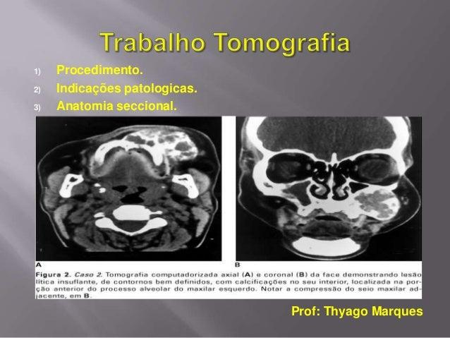 1)   Procedimento.2)   Indicações patologicas.3)   Anatomia seccional.                               Prof: Thyago Marques