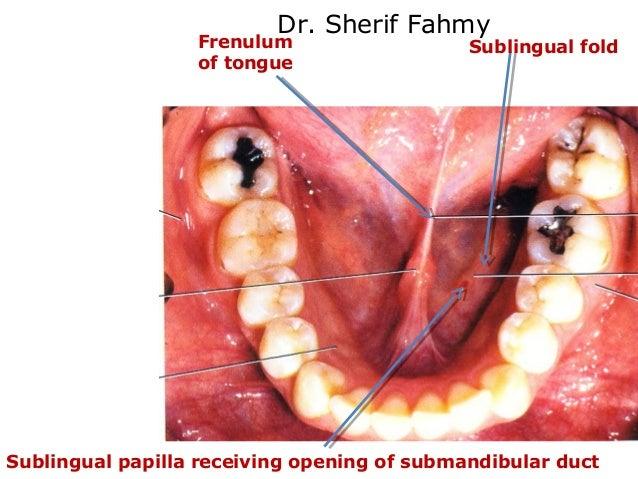Sublingual Fold On Tongue - Wiring Diagrams •