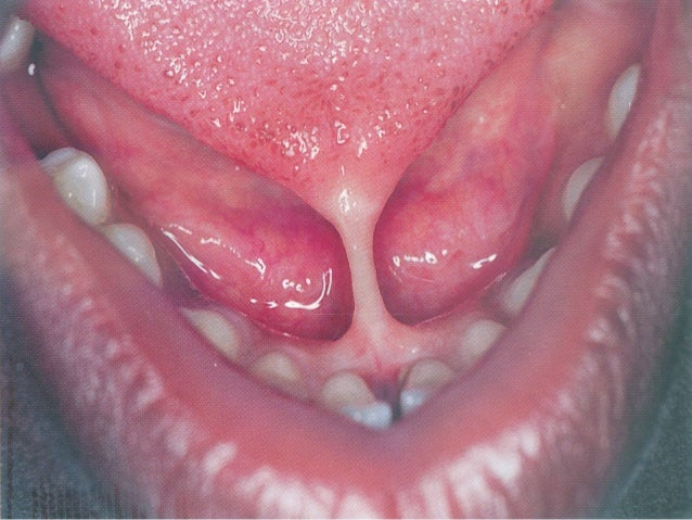Anatomy of mouth under tongue 6687624 - follow4more.info