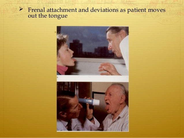  Frenal attachment and deviations as patient moves out the tongue