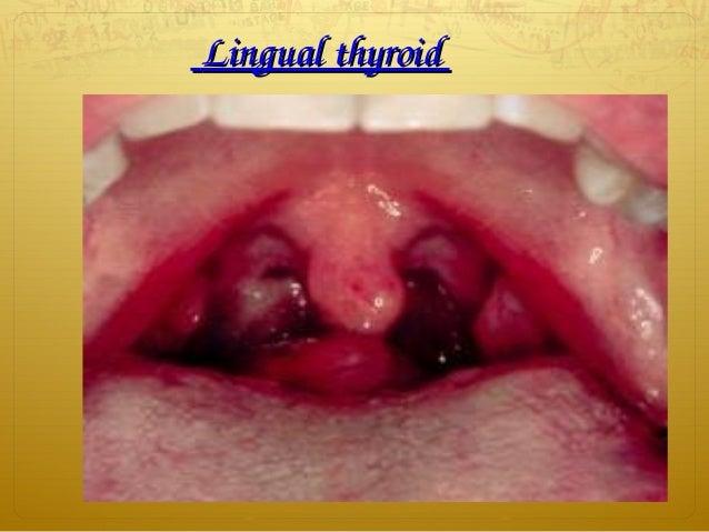 LingualthyroidLingualthyroid