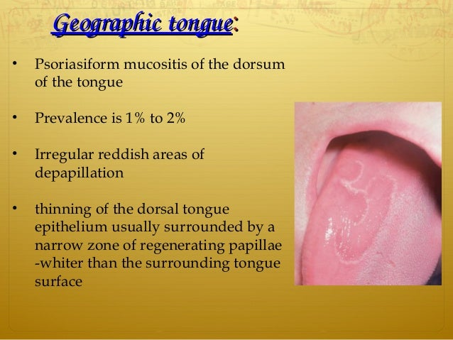 GeographictongueGeographictongue:: • Psoriasiform mucositis of the dorsum of the tongue • Prevalence is 1% to 2% • Irreg...