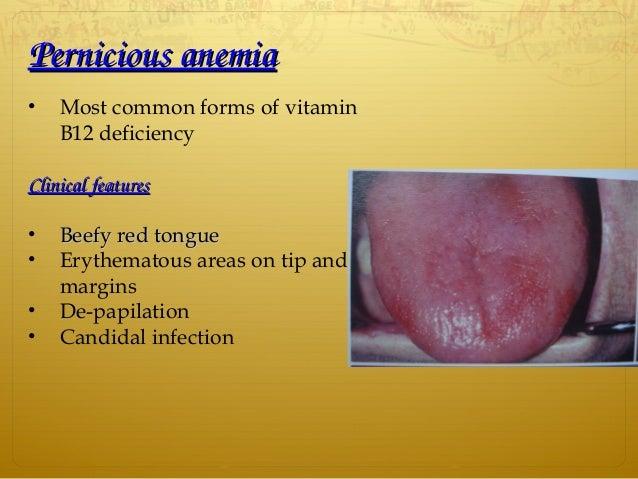 Tongue ppt B12 Deficiency Tongue