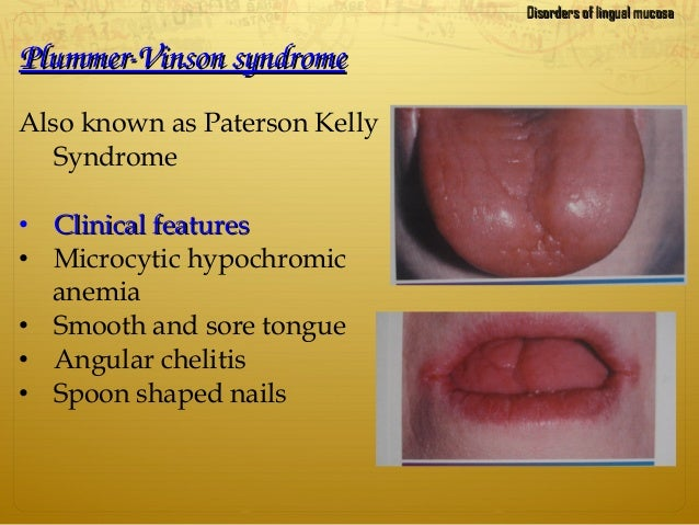 PlummerVinsonsyndromePlummerVinsonsyndrome Also known as Paterson Kelly Syndrome • Clinical featuresClinical features ...