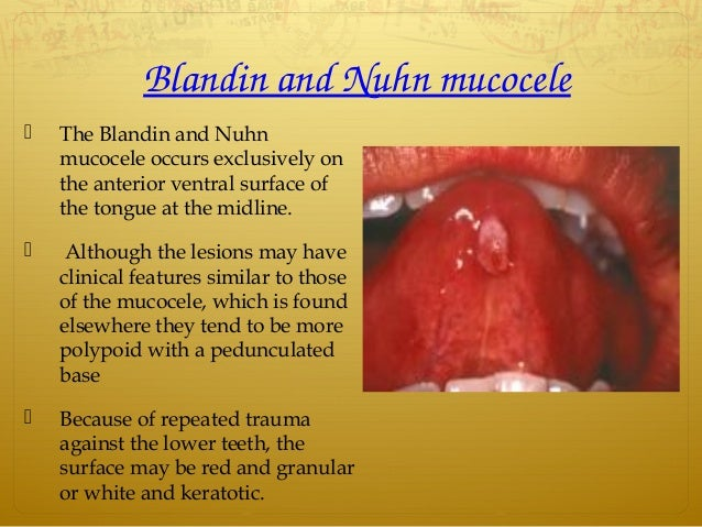 BlandinandNuhnmucocele  The Blandin and Nuhn mucocele occurs exclusively on the anterior ventral surface of the tongue...