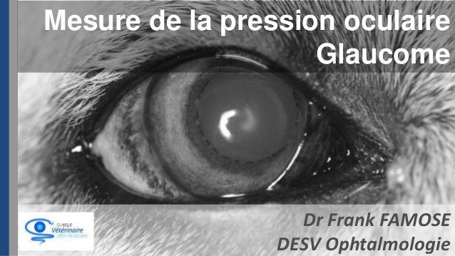 Mesure de la pression oculaire Glaucome  Dr Frank FAMOSE DESV Ophtalmologie