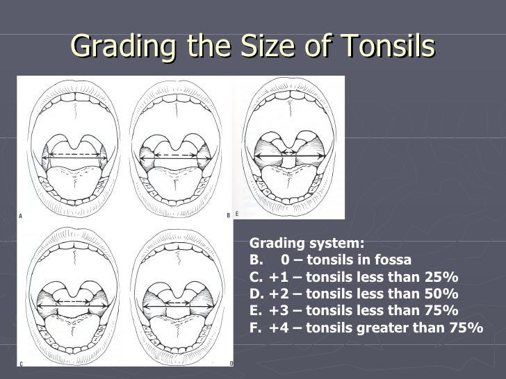 special situations in tonsil and adenoid disorder special situation