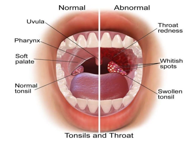 approch to patient with Sore throat