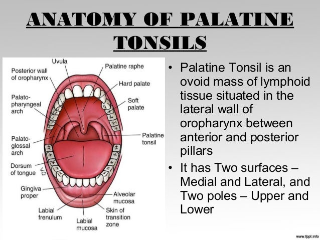 tonsillitis case, Human Body
