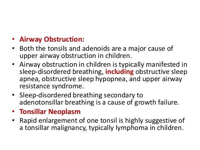 tonsils and adenoids in children