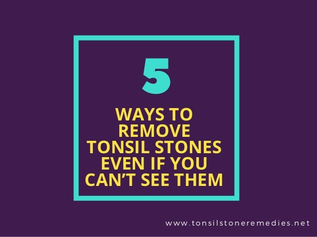 5 Ways to Remove Tonsil stones without touching