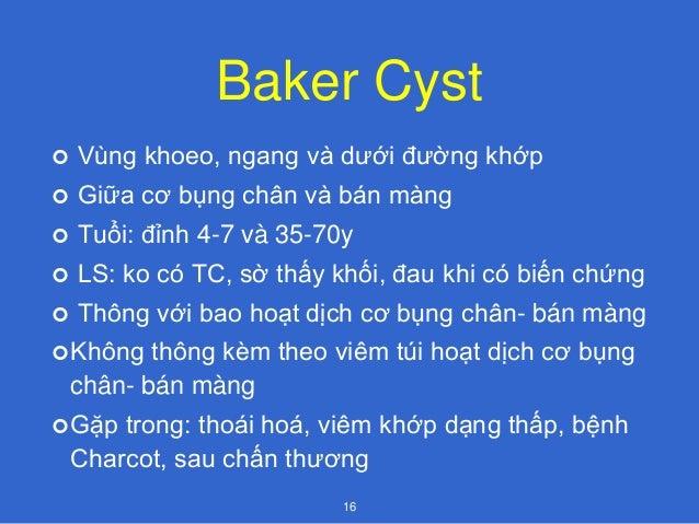 Baker Cyst 17