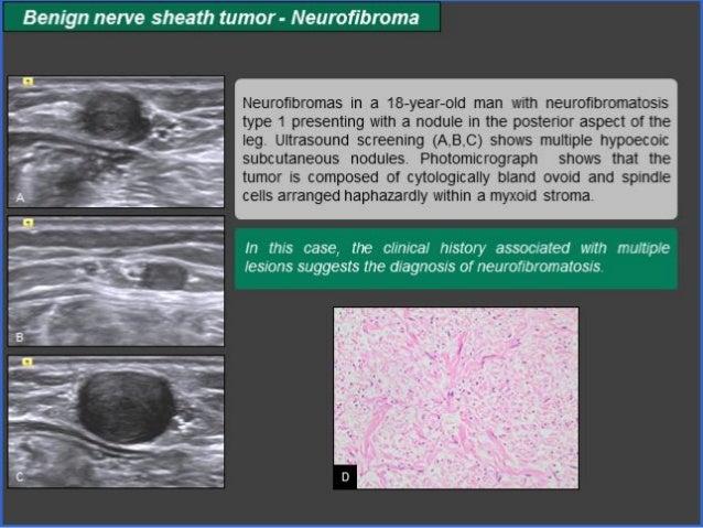 Neurofibroma  Lành tính giống schwannoma và chủ yếu là các tế bào schwann, nhƣng không tách ra đc với dây TK, nên PT phải...
