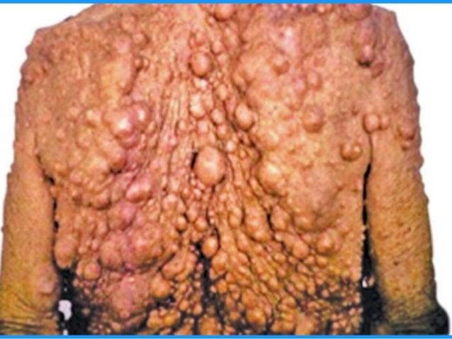 Tổn thƣơng mạch  U máu  Dị dạng mạch 39