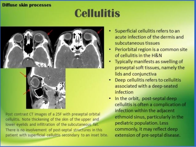 Hội chứng trâm- móng  HC Eagle's  Đau động mạch cảnh do mỏm trâm (styloid carotodynia)  Viêm mạc xƣơng móng (Hyoid fasc...