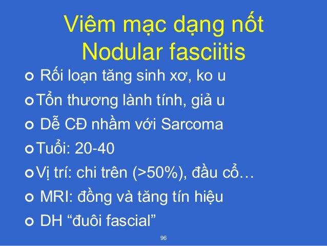 HC Eagle  1937  LS: đau hầu, đau tai, cảm giác có dị vật sau cắt Amidal, TC tăng lên khi nuốt, phát âm, hít sâu  Nguyên...