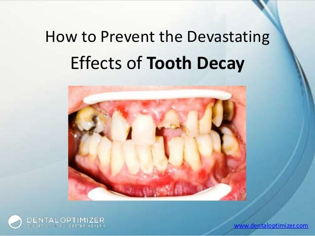 www.dentaloptimizer.com How to Prevent the Devastating Effects of Tooth Decay