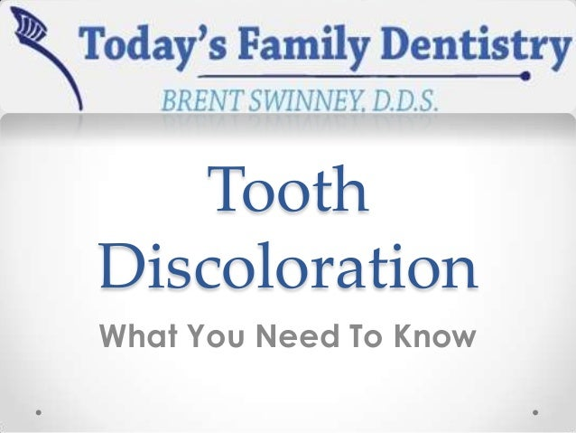 Tooth Discoloration What You Need To Know