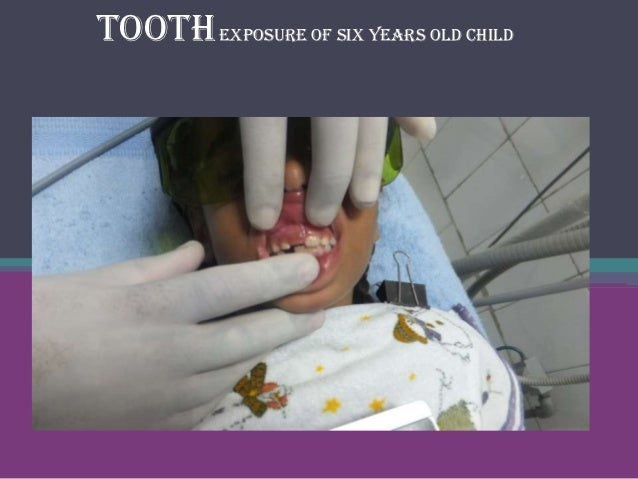 Tooth exposure of six years old child