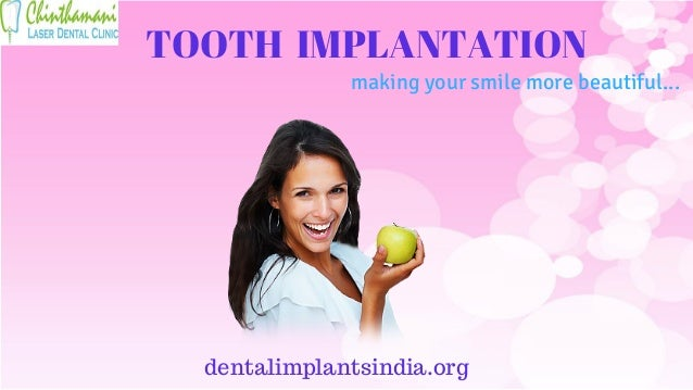 TOOTH IMPLANTATION dentalimplantsindia.org making your smile more beautiful...