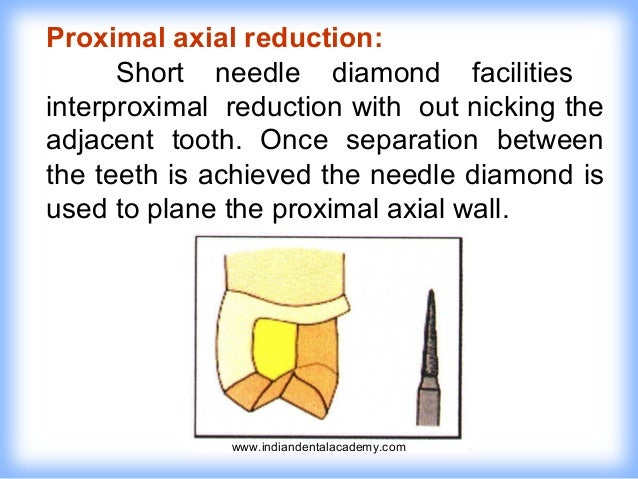 Tooth Preparation For Full Veneer Crowns Certified Fixed