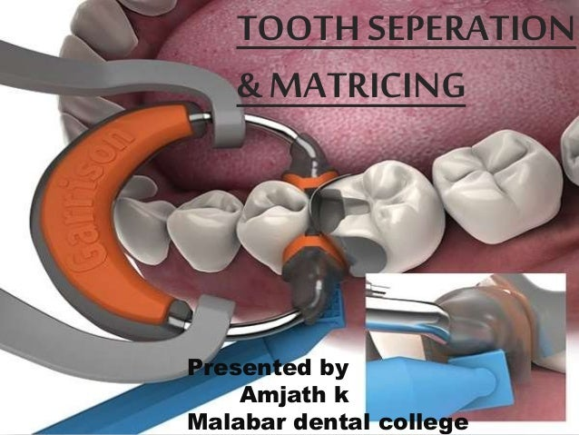 TOOTH SEPERATION & MATRICING Presented by Amjath k Malabar dental college