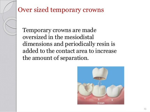 Over sized temporary crowns Temporary crowns are made oversized in the mesiodistal dimensions and periodically resin is ad...