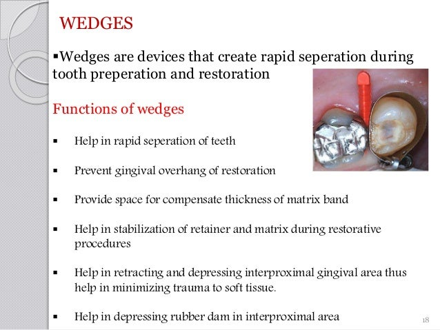 WEDGES Wedges are devices that create rapid seperation during tooth preperation and restoration Functions of wedges  Hel...