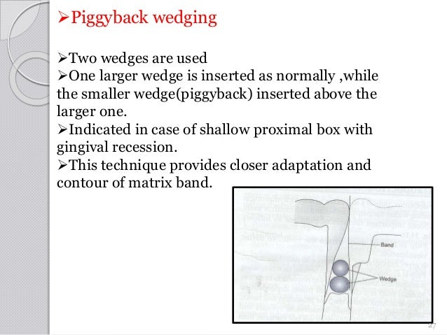Piggyback wedging Two wedges are used One larger wedge is inserted as normally ,while the smaller wedge(piggyback) inse...