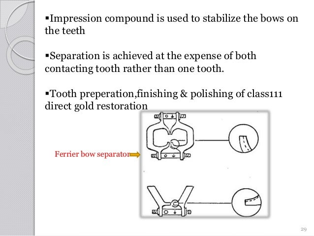 Impression compound is used to stabilize the bows on the teeth Separation is achieved at the expense of both contacting ...