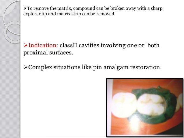 Indication: classII cavities involving one or both proximal surfaces. Complex situations like pin amalgam restoration. ...