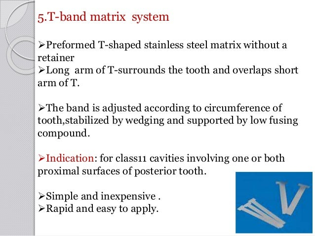 5.T-band matrix system Preformed T-shaped stainless steel matrix without a retainer Long arm of T-surrounds the tooth an...