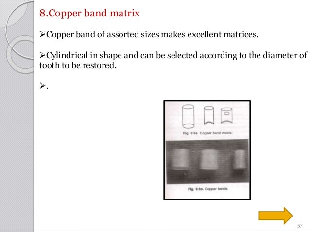 8.Copper band matrix Copper band of assorted sizes makes excellent matrices. Cylindrical in shape and can be selected ac...